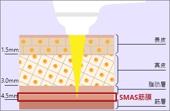 たるみやほうれい線はSMAS(スマス)筋膜が重要